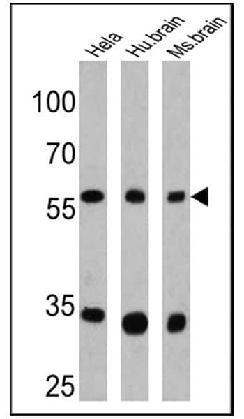 CPEB1 Antibody in Western Blot (WB)