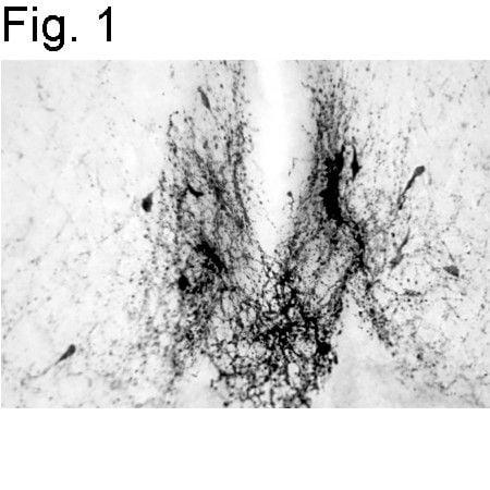GnRH1 Antibody in Immunohistochemistry (IHC)