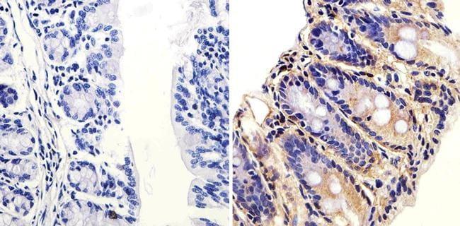 ARF1 Antibody in Immunohistochemistry (Paraffin) (IHC (P))