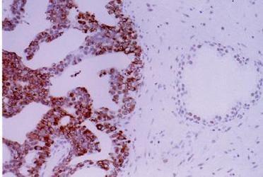APE1 Antibody in Immunohistochemistry (IHC)