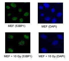 53BP1 Antibody in Immunofluorescence (IF)