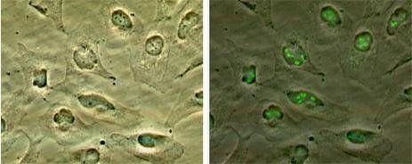 p14ARF Antibody in Immunocytochemistry (ICC)