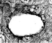 SR-BI Antibody in Immunohistochemistry (IHC)
