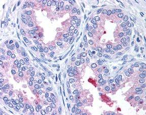 ABCA1 Antibody in Immunohistochemistry (IHC)