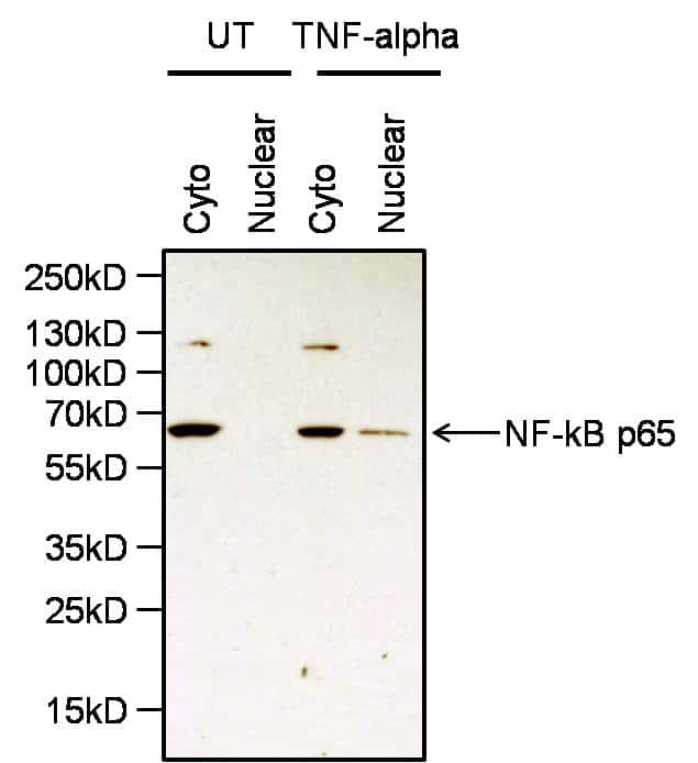 NFkB p65 Antibody in Cell Treatment