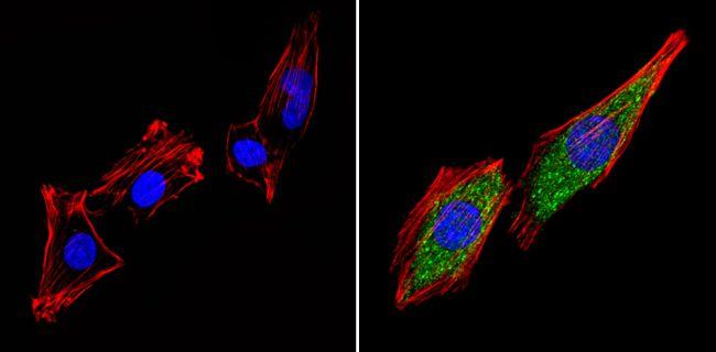 THRB Antibody in Immunofluorescence (IF)