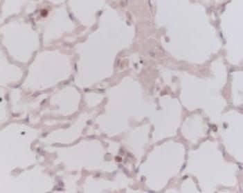 Ki-67 Antibody in Immunohistochemistry (IHC)