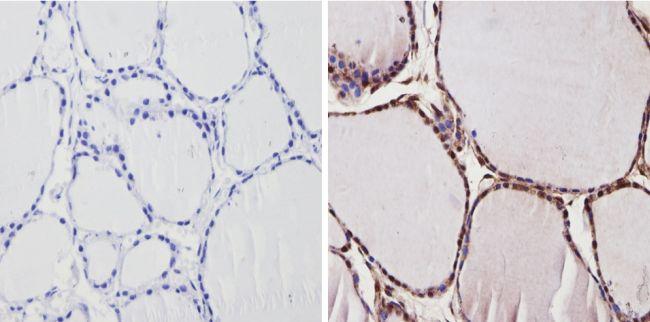 THRA Antibody in Immunohistochemistry (Paraffin) (IHC (P))