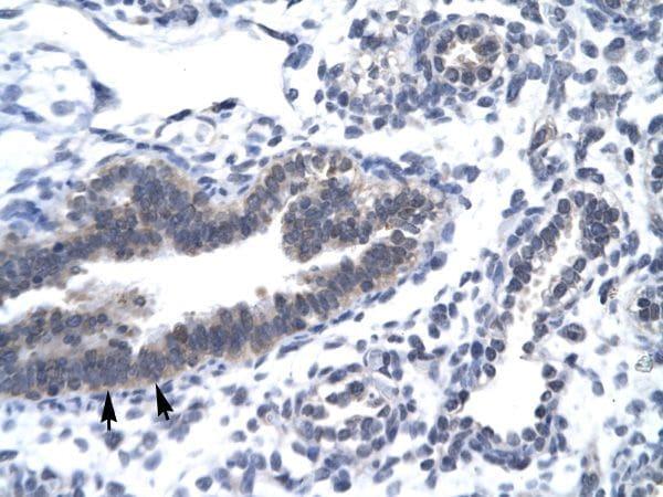 CDK7 Antibody in Immunohistochemistry (Paraffin) (IHC (P))