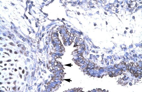 SMAD6 Antibody in Immunohistochemistry (Paraffin) (IHC (P))