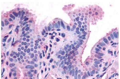 CCKAR Antibody in Immunohistochemistry (Paraffin) (IHC (P))