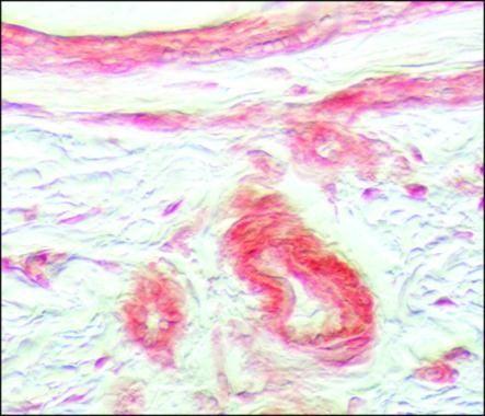 FGFR1 Antibody in Immunohistochemistry (Paraffin) (IHC (P))
