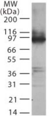TLR2 Antibody in Western Blot (WB)