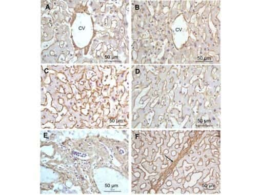 Collagen I Antibody in Immunohistochemistry (Paraffin) (IHC (P))
