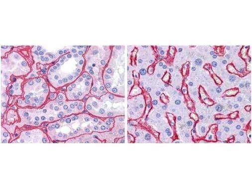 Collagen IV Antibody in Immunohistochemistry (Paraffin) (IHC (P))