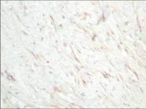 SFRP1 Antibody in Immunohistochemistry (IHC)