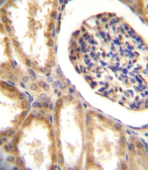 MCK10 Antibody in Immunohistochemistry (Paraffin) (IHC (P))
