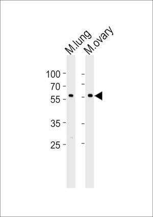 RYK Antibody in Western Blot (WB)