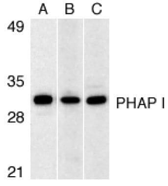 PHAP I Antibody in Western Blot (WB)