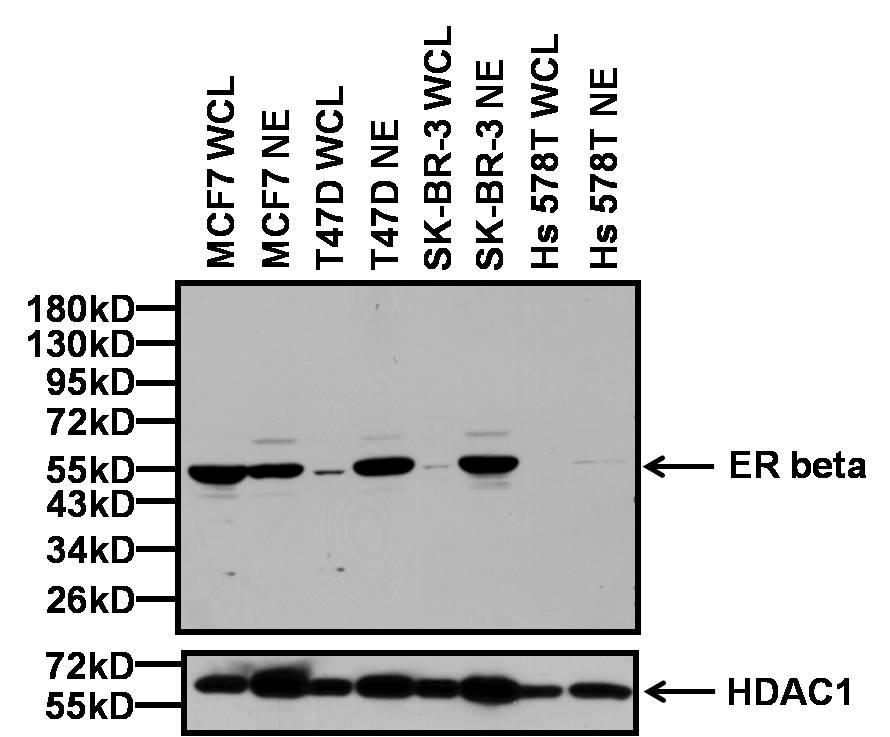 Estrogen Receptor beta Antibody in Relative expression