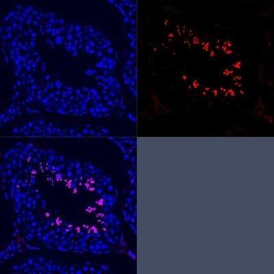 SCP3 Antibody in Immunofluorescence (IF)