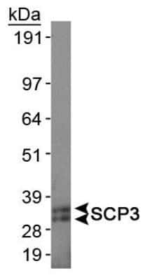 SCP3 Antibody in Western Blot (WB)