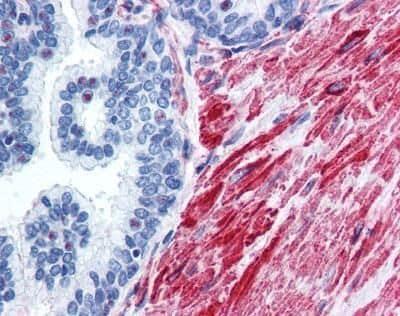 Phospho-MDM2 (Ser185) Antibody in Immunohistochemistry (Paraffin) (IHC (P))