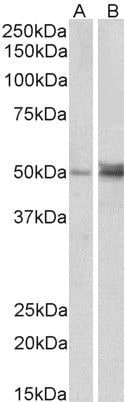 FOXL2 Antibody in Western Blot (WB)