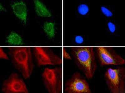 ABCE1 Antibody in Immunocytochemistry (ICC/IF)
