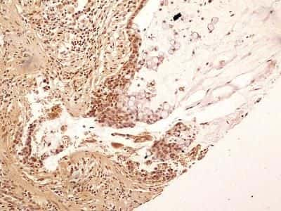 NuMA Antibody in Immunohistochemistry (Paraffin) (IHC (P))