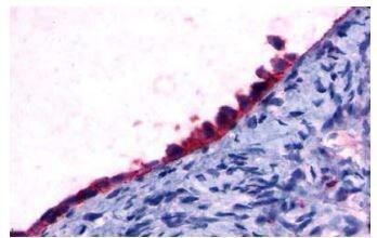 FOXL2 Antibody in Immunohistochemistry (Paraffin) (IHC (P))