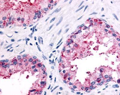 PSGR Antibody in Immunohistochemistry (Paraffin) (IHC (P))