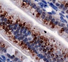 TRPA1 Antibody in Immunohistochemistry (IHC)