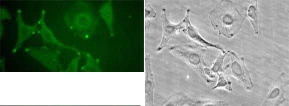 STIM1 Antibody in Immunocytochemistry (ICC)