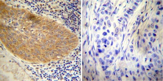 Glucocorticoid Receptor Antibody in Immunohistochemistry (IHC)