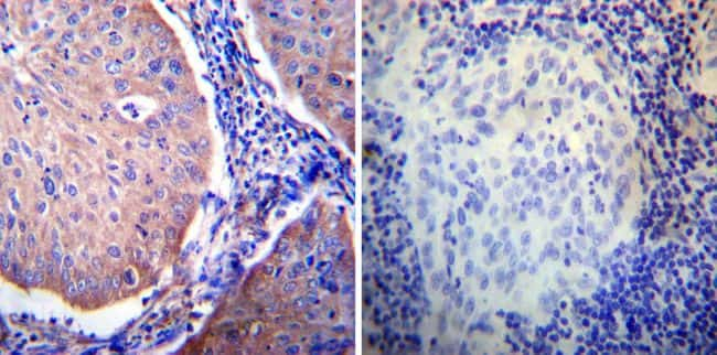 Glucocorticoid Receptor alpha Antibody in Immunohistochemistry (IHC)