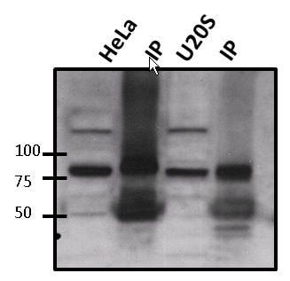 ATRIP Antibody in Immunoprecipitation (IP)
