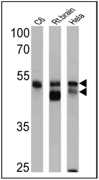 beta-Arrestin 1,2 Antibody in Western Blot (WB)
