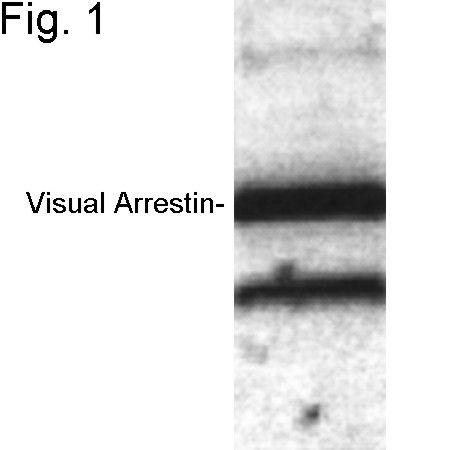 S-arrestin Antibody in Western Blot (WB)