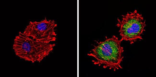 Tryptophan Hydroxylase Antibody in Immunofluorescence (IF)