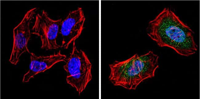PPAR gamma-2 Antibody in Immunofluorescence (IF)
