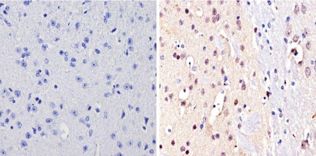 NCoR2 Antibody in Immunohistochemistry (Paraffin) (IHC (P))