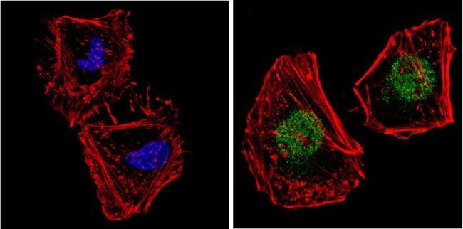 NCoR1 Antibody in Immunofluorescence (IF)