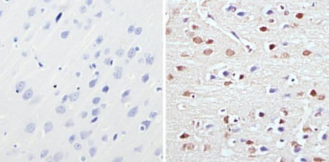 MECP2 Antibody in Immunohistochemistry (Paraffin) (IHC (P))