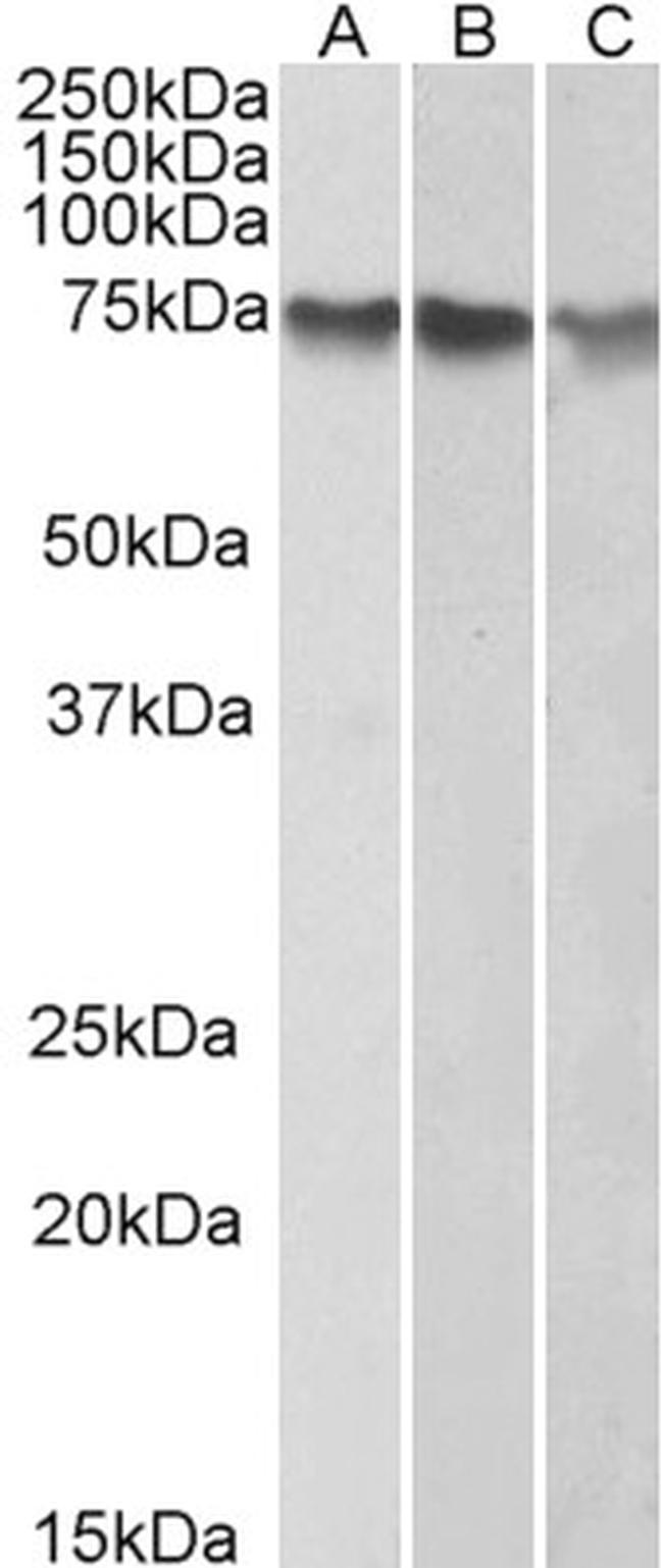 ATF2 Antibody in Western Blot (WB)