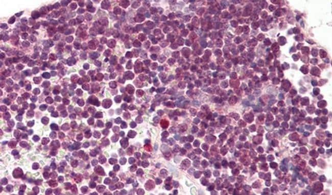 RAN Antibody in Immunohistochemistry (IHC)