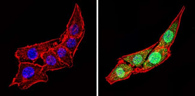 Calsequestrin Antibody in Immunocytochemistry (ICC/IF)