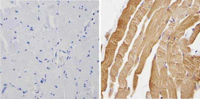 Calsequestrin Antibody in Immunohistochemistry (Paraffin) (IHC (P))