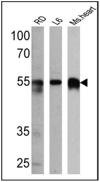 Calsequestrin Antibody in Western Blot (WB)