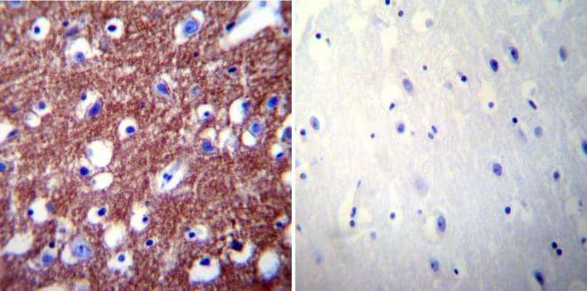 PMCA2 ATPase Antibody in Immunohistochemistry (IHC)